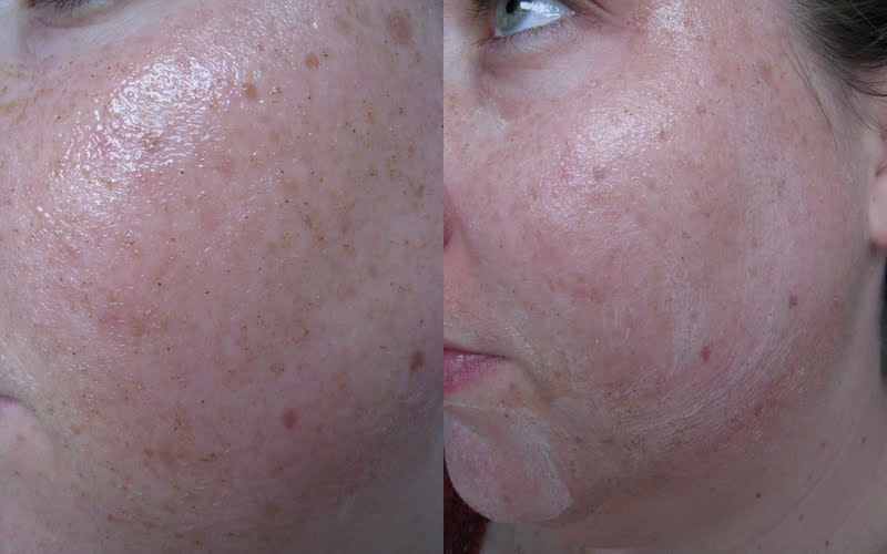 Emma Hardie Amazing Face Skincare review - The Professional