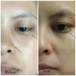 Review Ponds Age Miracle Wrinkle Corrector untuk Wajah Lebih Muda Bercahaya