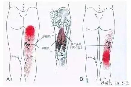"""膝蓋後膕窩""""筋短感""""疼痛,每天堅持一個鍛煉方法,操作非常簡單(肌肉拉傷)"""