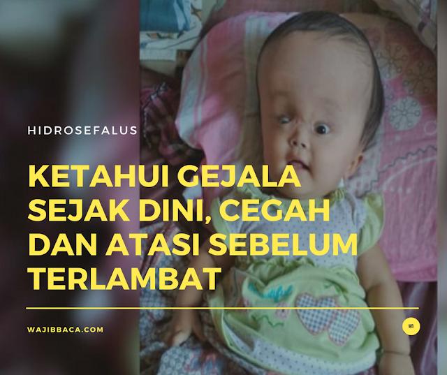 Siti Rahmawati, Bayi Desa Pasiripis Sukabumi Pengidap Hidrosefalus