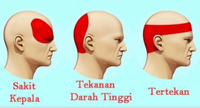 Ajaib, Cuma 5 Menit! Sakit Kepala Anda akan Hilang Seketika Dengan Menekan 6 Titik Ini,
