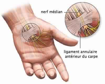 Comment traiter le syndrome du canal carpien