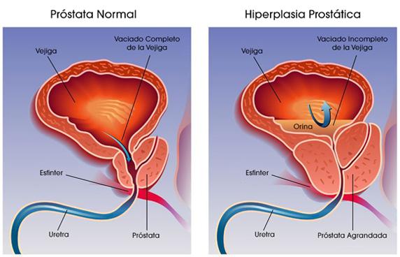 criocirugía de próstata agrandada