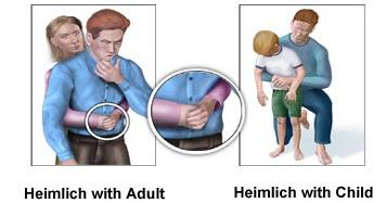 basic first aid in choking  nirogikaya  jiyo healthy