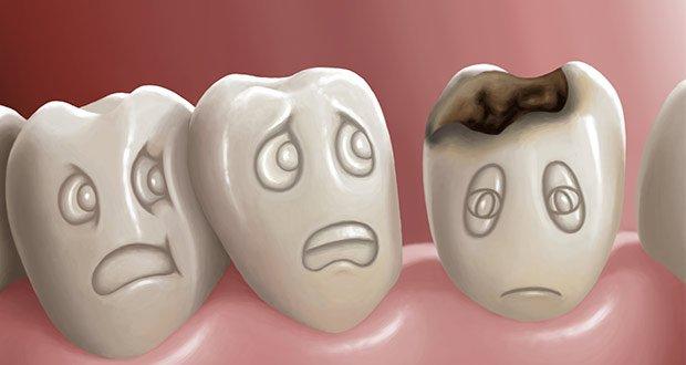 مكافحة تسوس الأسنان