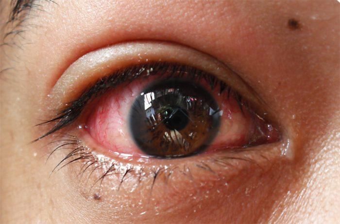 Pengobatan Penyakit Mata Belekan Tradisional