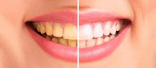 remedios para los dientes amarillos