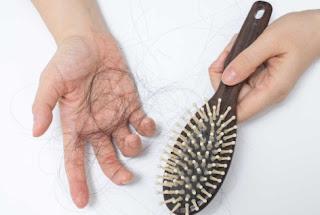 Cara Mengatasi rambut rontok dan kering Secara Mudah dan Alami