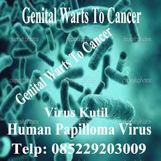 Virus Human Papilloma Virus (HPV) Penyebab Kutil Kelamin