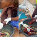 MAN LOSES FINGERS AFTER A CIGARETTE ARGUMENT WITH FULANIS IN NIGER STATE (GRAPHIC PHOTOS)