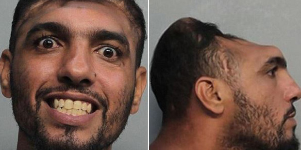Half-headed man, Carlos Rodriguez charged with attempted murder in Florida