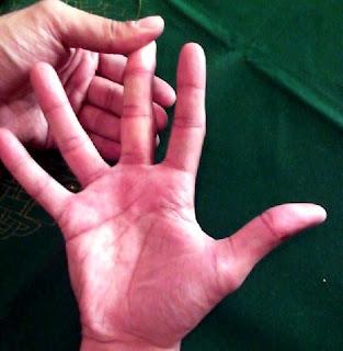 Dedo Indice desviado hacia el dedo Medio