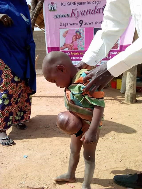 Photos: Little boy with unidentified umbilical problem spotted in Damaturu