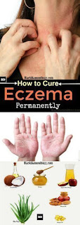 Treatment of eczema or skin diseases and more information.eczema free you..