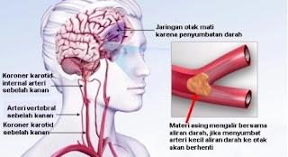 gambar daun karet kebo, cara mengolah daun karet kebo, manfaat daun karet kebo bagi kesehatan, karet kebo untuk stroke, cara merebus daun karet kebo
