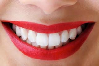 20 Cara Terampuh Memutihkan Gigi Kuning Avonvon