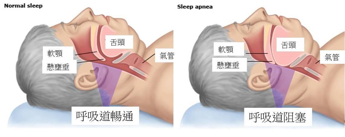 李宜展 | 耳鼻喉專科醫師: 睡眠呼吸中止癥簡介