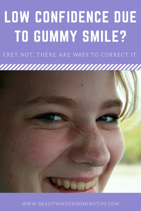 girl with a gummy smile