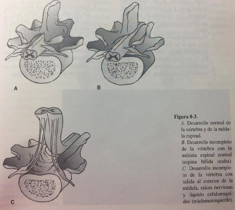 Espina bífida (Mielodisplasia) - Clasificación ~ Fisioterapia