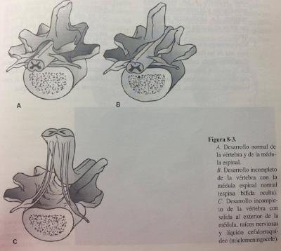 Espina bífida (Mielodisplasia) - Clasificación