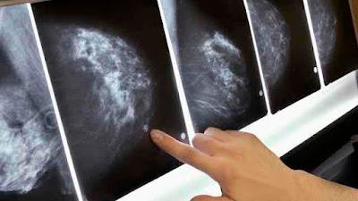 5 Jenis Makanan Orang Perempuan Kena Amalkan Untuk Elak Kanser Payudara