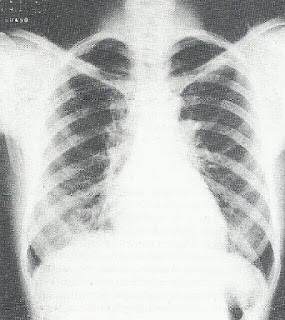 Asbestose exposiçao tecelagem utilizando asbesto