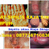 Obat Tradisional Penyakit Sipilis