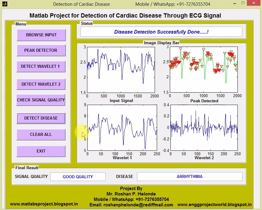 Detection of Cardiac Disease from ECG Signal Matlab Project