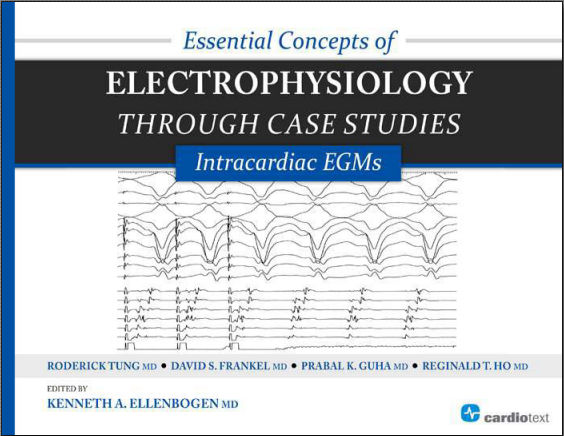 Essential Concepts of Electrophysiology through Case Studies-Intracardiac EGMs (May 1, 2015)