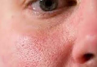 15 Cara Mengecilkan Pori Pori di Wajah Secara Alami