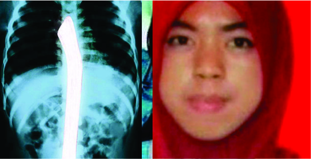 Hasil Otopsi: Gagang Cangkul di Organ Dalam Eno Tembus ke Paru-Paru