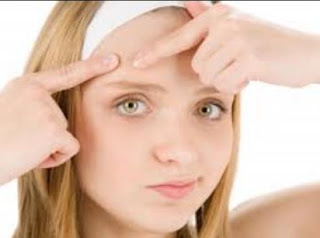 Forehead Acne can appear anywhere and at any age CAUSE FOREHEAD ACNE AND HOW TO REMOVE IT