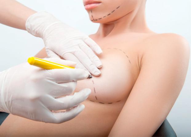 Aumento de senos: procedimientos, tipos de prótesis y centros de confianza