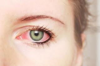 Suplemen untuk mata merah berair