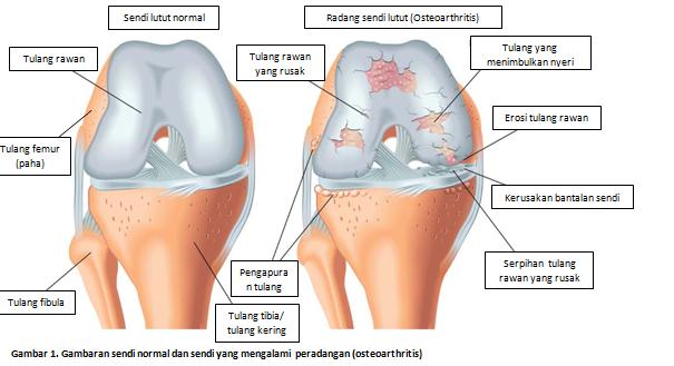 Obat Tradisional Nyeri Sendi Akibat Osteoarthritis Sampai Tuntas