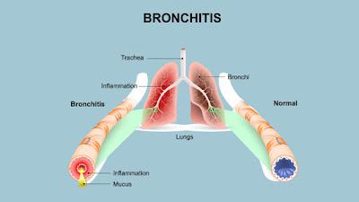 Obat Bronkitis Paling Ampuh