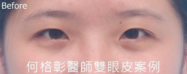 訂書針封閉式雙眼皮術前