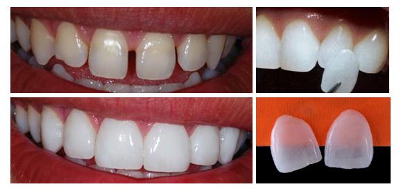 A técnica é indicada para pacientes com dentes fraturados, escurecidos,  levemente desalinhados, dentes anteriores com defeitos no esmalte e  superfície ... 4d5ae68d4b