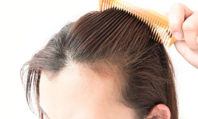 Cara Perawatan Rambut Rontok