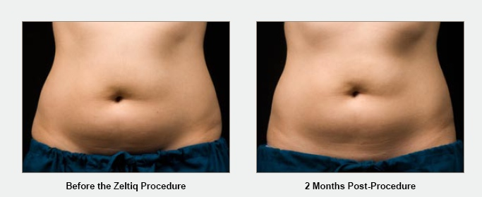 ... die over a period of 2-4 months. It crystallizes the lipids in the fat  cells causing the slow breakdown of the cells and then is released through  your ...