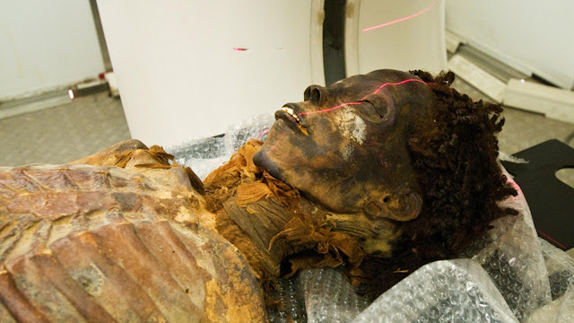 Dying in ancient Egypt: Evidence of inflammation, infection and possible cancer