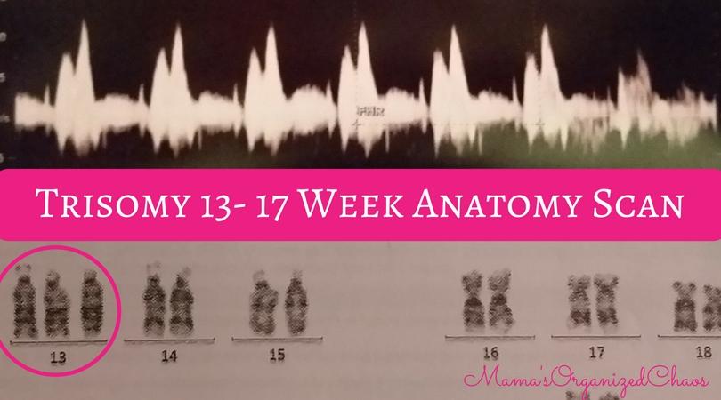 Trisomy 13 April Reys 17 Week Anatomy Scan Mamas Organized Chaos