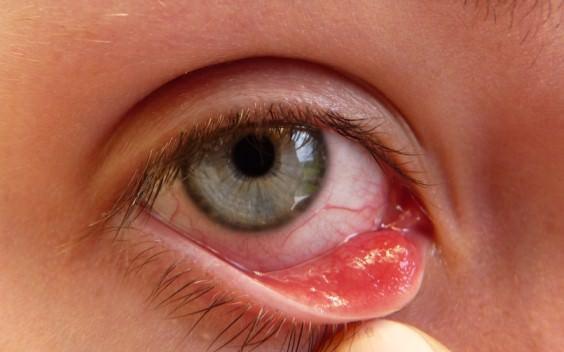 طريقة علاج رمد العين بالأعشاب