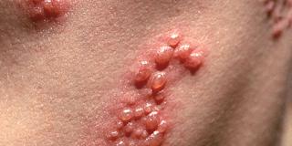 Infantigo Symptoms, Causes, Treatment, Images, Remedies