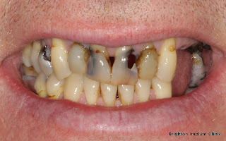 Worst Foods For Your Teeth photo