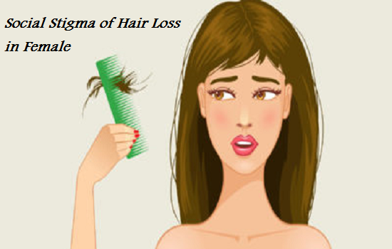 Social Stigma of Hair Loss in Female