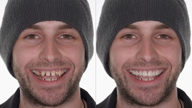 Lentes de contato para os dentes transformam aparência e podem durar até 15 anos