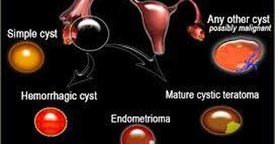 Ovarian masses မ်ိဳးဥအိမ္ အစိုင္အခဲမ်ား