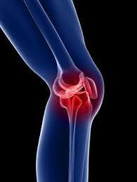 Lutut sakit setelah jongkok