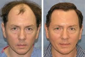 saç ekimi önce ve sonra